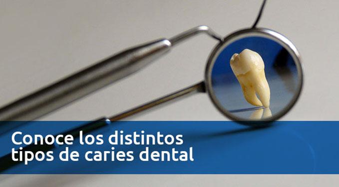 Conoce-los-distintos-tipos-de-caries-dental