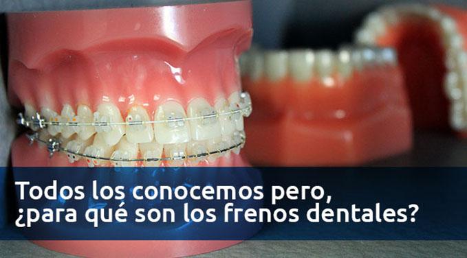 Todos-los-conocemos-pero-para-que-son-los-frenos-dentales