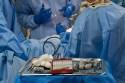 lo-que-debes-saber-sobre-las-cirugias-dentales
