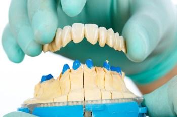 que-son-los-puentes-dentales-fijos