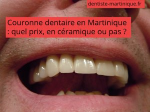 prix couronne dent martinique