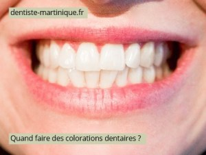 colorations-dentaires