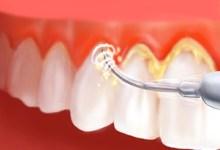 detartrage soins dentaires et esthétiques cabinet paraschiv perpignan