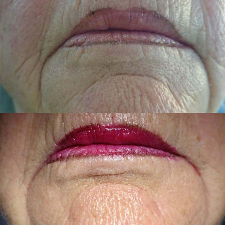 soins dentaires alignement blanchiment carie prothèses inlay onlay pivot cabinet dentaire paraschiv perpignan comblement ribes levres