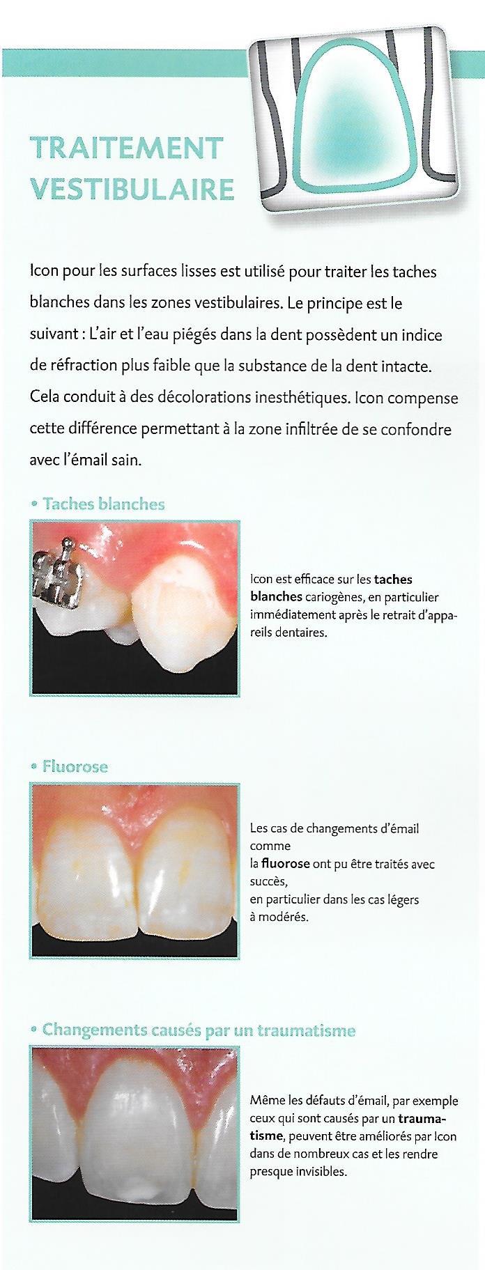 soins alignement blanchiment carie prothèses inlay onlay pivot cabinet dentaire paraschiv perpignan