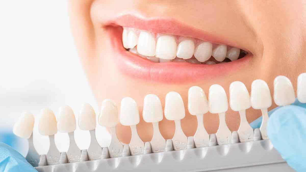 Dental Veneers - Transform Your Smile Gainesville FL