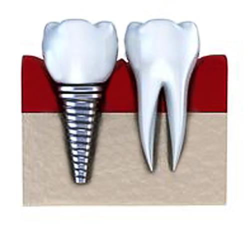 Implant-500-x-450.jpg?fit=500%2C454&ssl=1