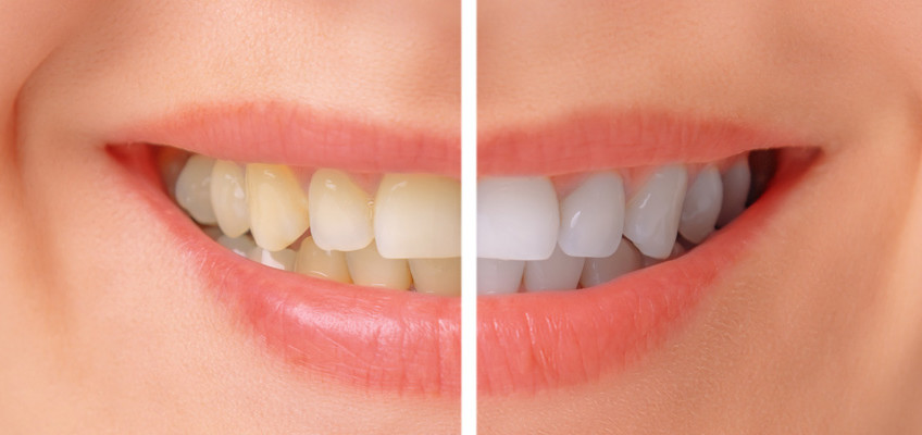 teeth-whitening-848x400.jpg?fit=848%2C400&ssl=1