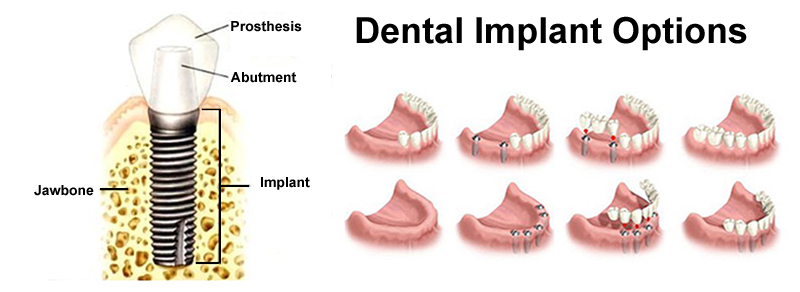 Dental-Implant-Options-800-x-292-LV.jpg?fit=800%2C292&ssl=1