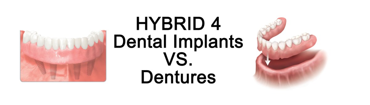 Dental-Implants-vs.-Dentures-1500-x-425.jpg?fit=1200%2C340&ssl=1