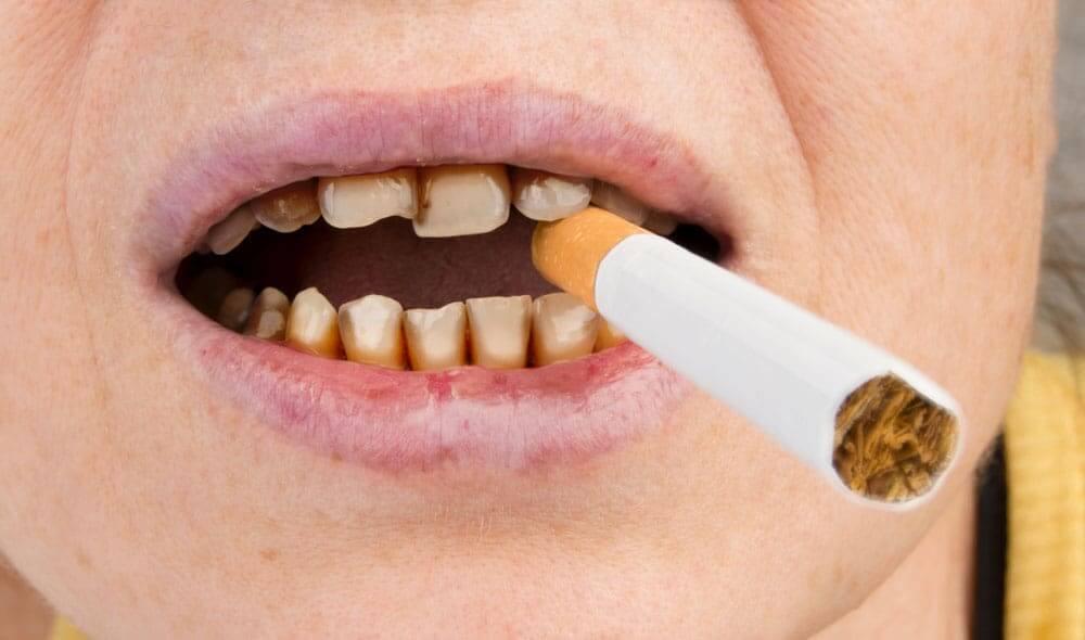 Smoking-1.jpg?fit=1000%2C590&ssl=1