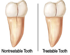 This split screen diagram reveals a tooth with a crack that can be treated and one with a fracture so deep that the tooth cannot be saved.