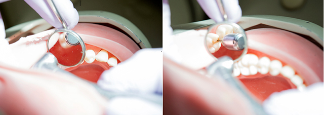 This side-by-side photo illustration shows how when held incorrectly, the handpiece can actually block the view of the tooth in the dental mirror, and on the right, positioning has allowed for a clear view of the tooth.