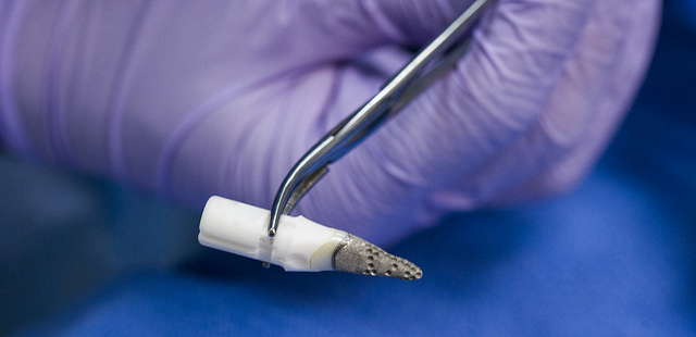 Each titanium and zirconia REPLICATE tooth is custom-made to serve as an anatomical copy of a patient's natural tooth.
