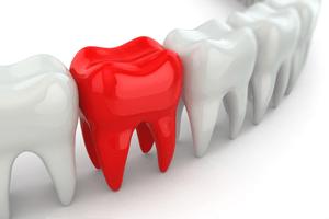 dental-emergency-dentistryon7