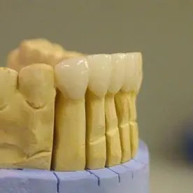 Dental work 5