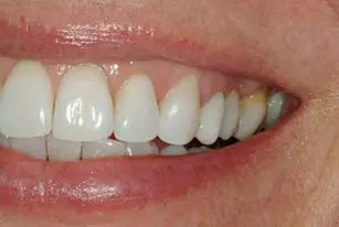 Zirconium crowns look like natural teeth