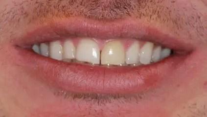 Teeth before using veneers