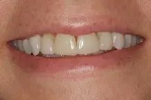 initial smile of patient without porcelain crowns