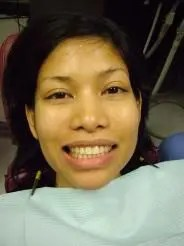 patient having dental implants front view