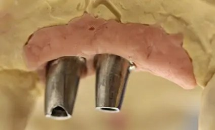 Implants analogs on model