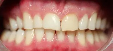 Prior to treatment of pjc Zirconia crowns