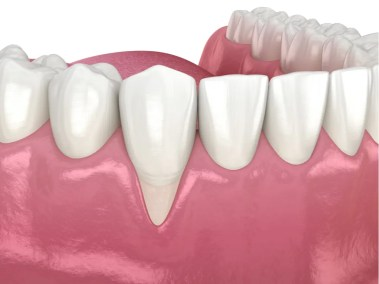 Periodental step 2