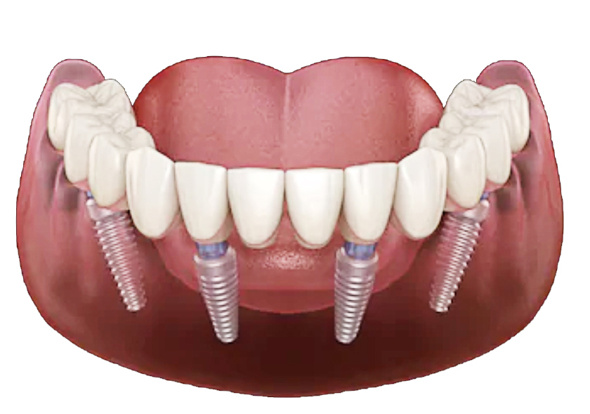 Lower-Dental-Implants-840-x-590.jpg?fit=840%2C589&ssl=1