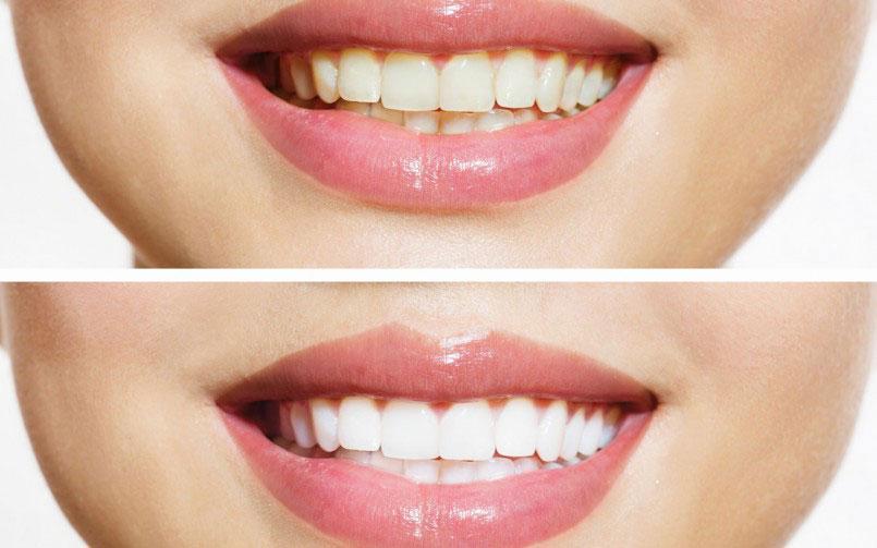 Discolored-Teeth.jpg?fit=805%2C503&ssl=1