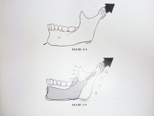 mandibular growth