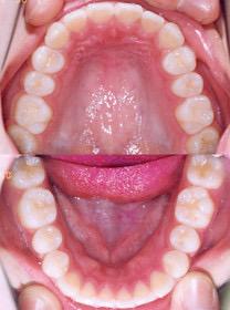 矯正歯科専門医による非抜歯矯正治療結果