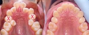 矯正治療終了後11年が経過したTTさまの矯正治療前後の歯列