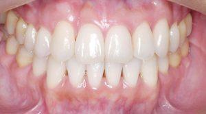 成人女性叢生と右上側切歯欠損を伴う不全症例
