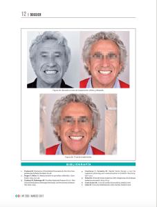 """Publicación en Gaceta Dental de """"Tratamiento Multidisciplinar"""" por Jesús Creagh."""