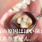 虫歯の原因は「ばい菌」だけではないんです。