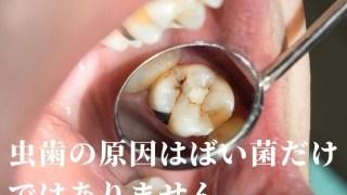 虫歯の原因|高松市の吉本歯科医院