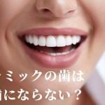 セラミックの歯は虫歯ならない?
