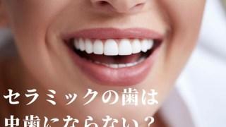 セラミックの歯は虫歯にならない?