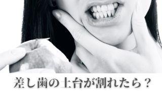 差し歯の土台が割れた場合|香川県高松市の吉本歯科医院