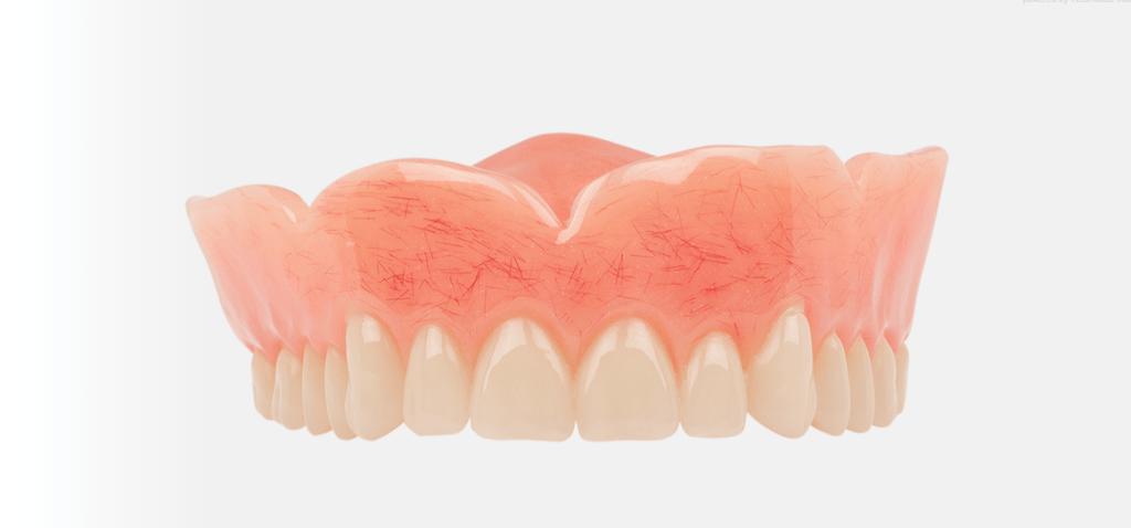 Full Denture Implants