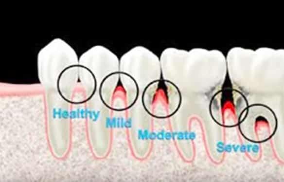 Gum-disease-video.jpg?fit=584%2C374&ssl=1