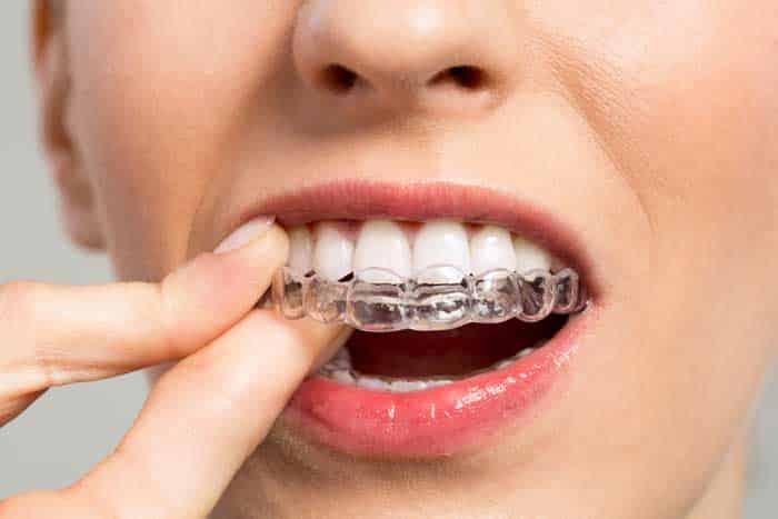 DIY-Orthodontics.jpg?fit=700%2C467&ssl=1