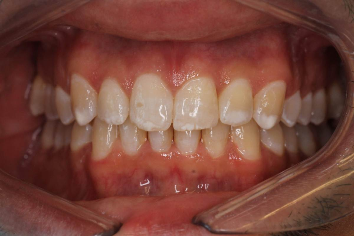 Invisalign 1 After 1