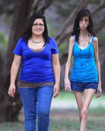 La Femme La Plus Maigre Du Monde : femme, maigre, monde, Femme, Maigre, Monde, Dépêche, Kabylie