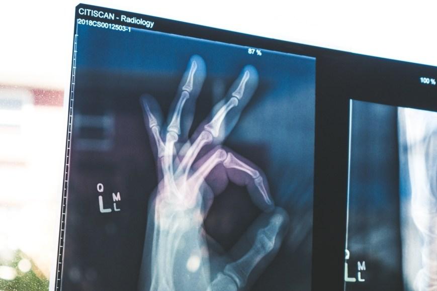 radiografia mano peligro imprevisto viaje