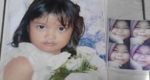 Inilah Andini, gadis cilik cantik berusia 9 sebelum diserang tumor ganas. Tapi kemudian dia meninggal di RS Fatmawati.
