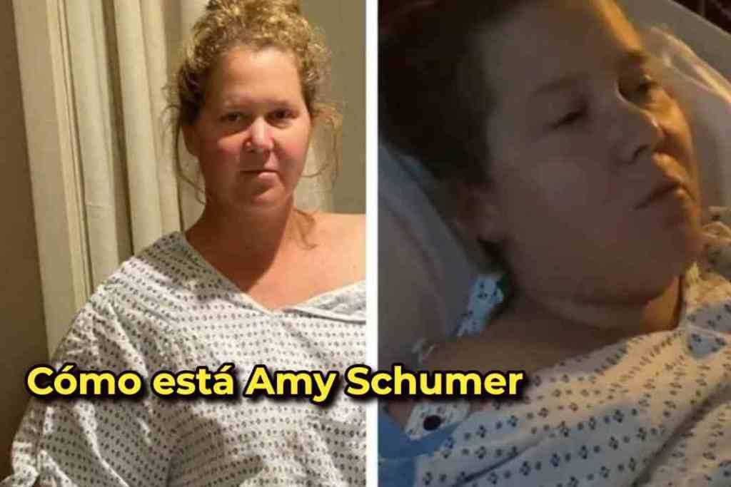 Cómo está Amy Schumer