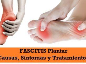 Causas, Síntomas y Tratamiento de la Fascitis Plantar