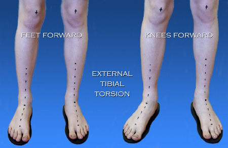 Tibial torsion in right ankle