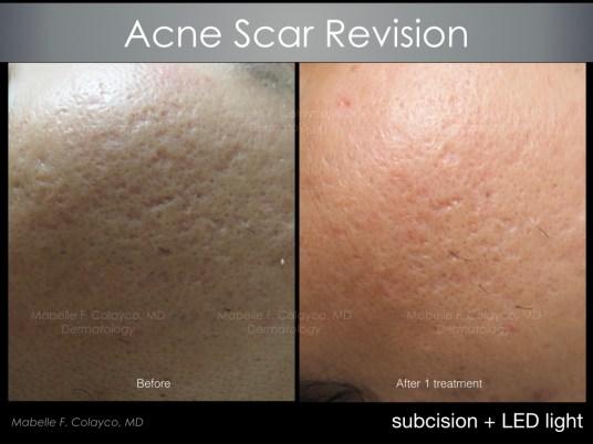 acne scar revision 2018 1 a AM
